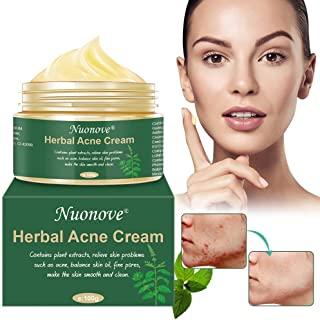 Acne Crema, Crema Anti Acne, Crema Acne, Crema Cicatrici Acne, Crema Viso Acne, Gel anti acne per il viso, il collo, petto e sch